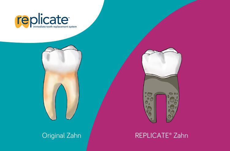 REPLICATE System - Original vs. Implant