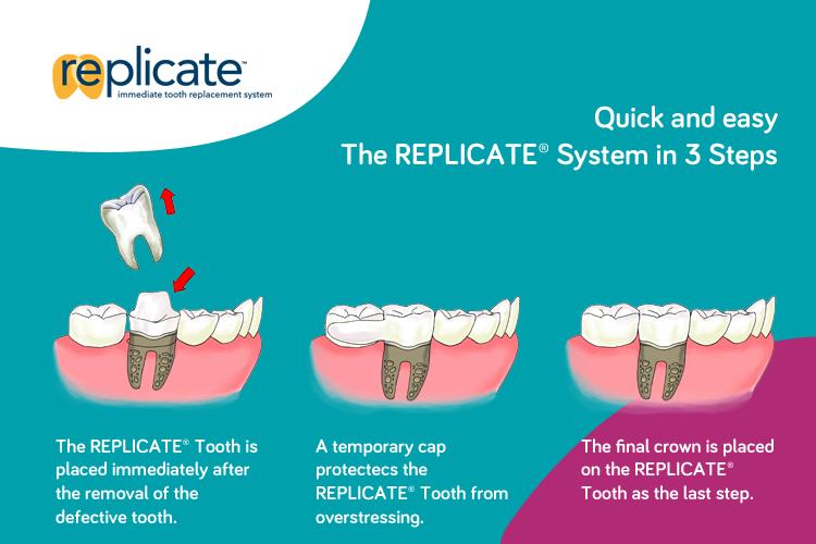 Das REPLICATE System in 3 Schritten